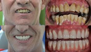 dental implants in colombia carena