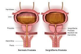 Prostatakrebs ab welchem alter