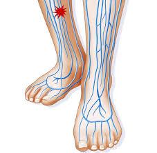 Symptome venenthrombose bein