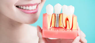 how much do dental implants cost are