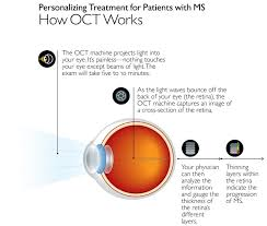 Potential Genetic Markers Of Multiple Sclerosis Severity