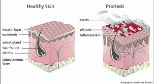 Psoriasis Treatment Askanestheticians Blog