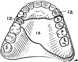 Znalezione obrazy dla zapytania denture  clipart
