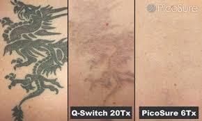 tirar tatuagem