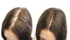 infinity hair fibers. hair loss concealer infinity hair fibers m