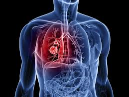 Image result for lung cancer surgery