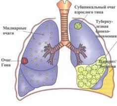 Сестринский процесс при туберкулезе Рис 2 Легочные проявления туберкулёза