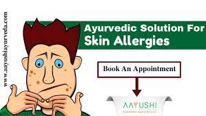 Ayurvedic Treatment For Skin Allergy In Kochi | Ayurvedic skin care I…