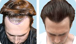 Image result for Hair Transplant