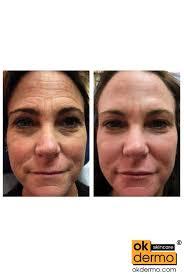 cream that works like botox boxtlak bl anti aging cream 20g order wrinkle treatment facial
