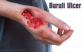 Image result for centres for disease control and prevention buruli ulcers