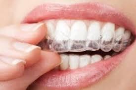 polijsten tanden