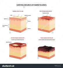 skin burn classification first second third stock vector  skin burn classification first second and third degree skin burns