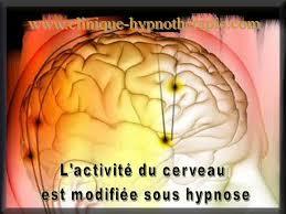 """Résultat de recherche d'images pour """"activité cérébrale sous état d'hypnose"""""""