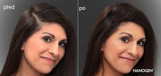 Nanogen Keratinová Vlákna Na Zahuštění řídkých Vlasů