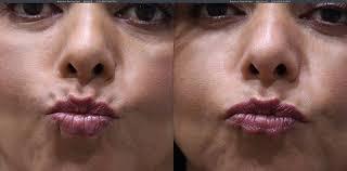 botox lip flip torrance ca lumier