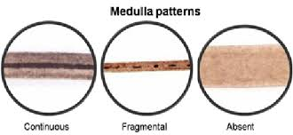 Medulla Patterns