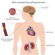 Hypertension Headache Location Chart High Blood Pressure Hbp Hypertension Symptoms