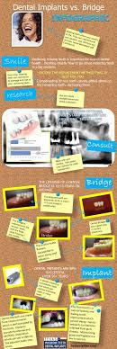 Best 25+ Dental bridge ideas on Pinterest | Dental works, Best ...