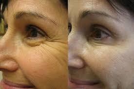 wie lange hält botox