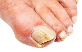 what is that crusty yellow stuff on your toenails