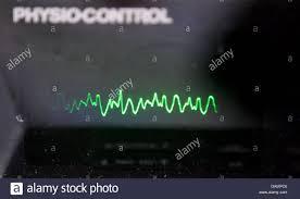 Il grafico di un defibrillatore cardiaco indica la fibrillazione  ventricolare nel cosiddetto skillslab presso il reparto didattico  dell'ospedale universitario a Halle, Germania, il 7 giugno 2011. I treni  skillslab studenti di medicina