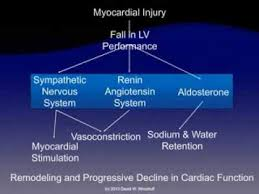 Pathophysiology Of Chf Pathophysiology Of Heart Failure Youtube