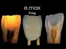 Ivoclar Classic Firing Chart E Max Ceram Porcelain Build Up Smiledesign