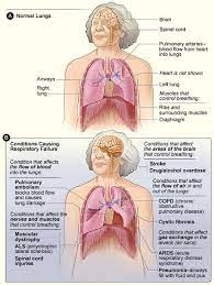 hypoxaemia physiopedia
