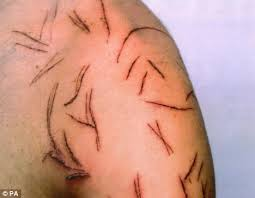 arm blade name. when he woke up, wayne robinson discovered his body was covered in cuts arm blade name _