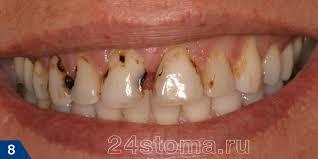 Кариес причины возникновения Пришеечный кариес в области верхних зубов Множественные очаги межзубного кариеса в области верхних зубов