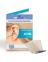 Acne Placement Chart Acne Ear Seed Kit