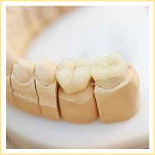 Dental Inlay Dental Inlays Onlays Epic Dental Serving Norwood Walpole
