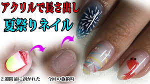 アクリルで長さ出し夏祭りジェルネイルデザイン爪が剥がれてから2週間後