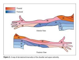 Chiro Chart Observed Patterns Of Cervical Radiculopathy Chiropractic