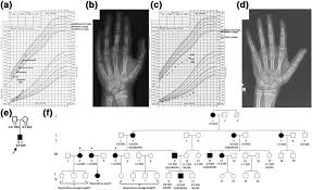 Bone Age Wrist Chart A Growth Chart Of Proband In Family 1 Height Is Shown As