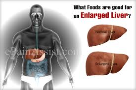 What Foods Are Good For An Enlarged Liver