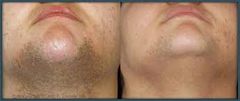science behind bbl for hair removal