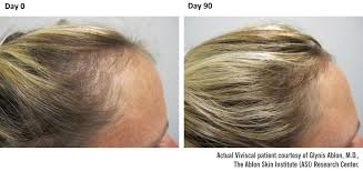 10 natural ways to prevent hair loss