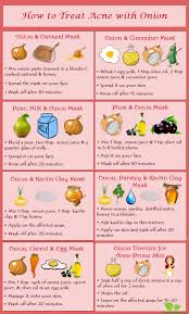 How to Treat Acne with Onion   Home Remedies by SpeedyRemedies