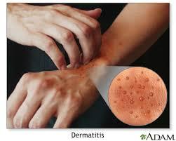 eczema atopic dermais symptoms