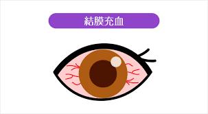 目 充血 治す