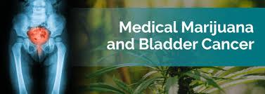 cbd treatment for bladder cancer