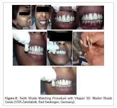 Relationship Of Facial Skin Complexion With Gingiva And