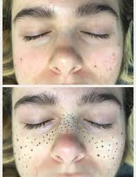 microblading along the hairline can create a fuller look or hide bald spots this technique is
