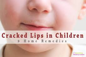 home remes for ed lips in children