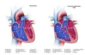 ventricular septal defect congenital heart defects ncbddd cdc ventricular septal defect vsd