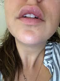 py 6 days after juvederm fillers