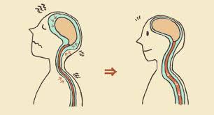 「脳脊髄液画像」の画像検索結果
