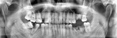 canton wisdom teeth extraction